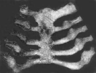 婴儿肋骨突出_小孩肋骨突出_产后肋骨突出图片_女生 ...