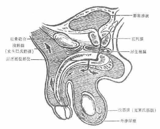 尿道球部创伤尿外渗范围