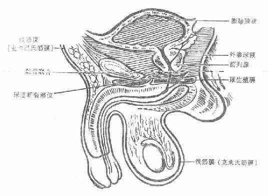 尿道膜部创伤尿外渗范围