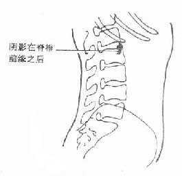 肾结石X线侧位平片