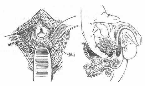 耻骨上前列腺摘除术