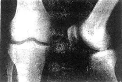 ,胸椎12个,腰椎5个,骶椎5个和尾椎4个.颈、胸、腰椎各脊椎间都